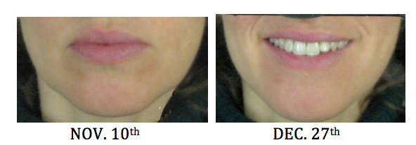 Perioral Dermatitis: A Personal Odyssey | My CMS